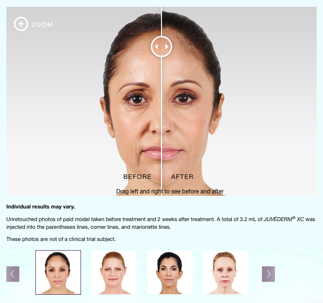meirson-juvederm-slider-screenshot