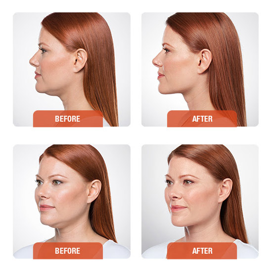 meirson-kybella-before-&-after