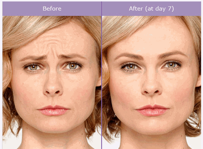 meirson-botox-before-and-after